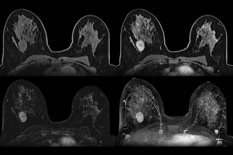 Photo of breasts scanned with AB-MRI