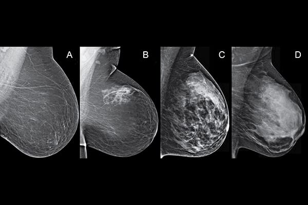 Breast density scan
