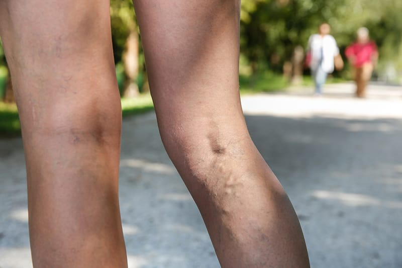 A pair of legs out for a walk, that have varicose veins