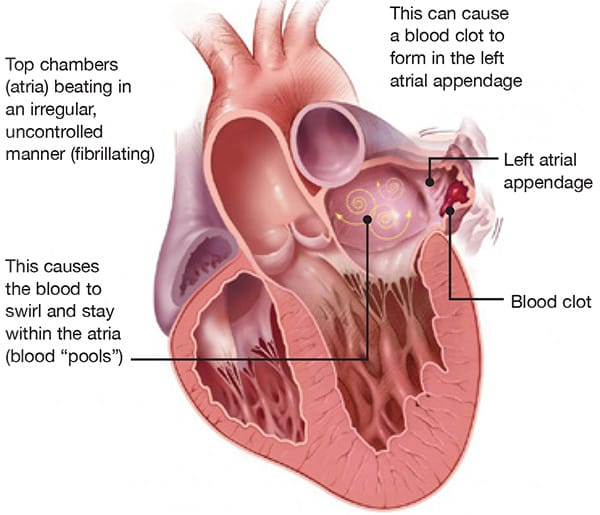Diagram of a heart with atrial fibrillation