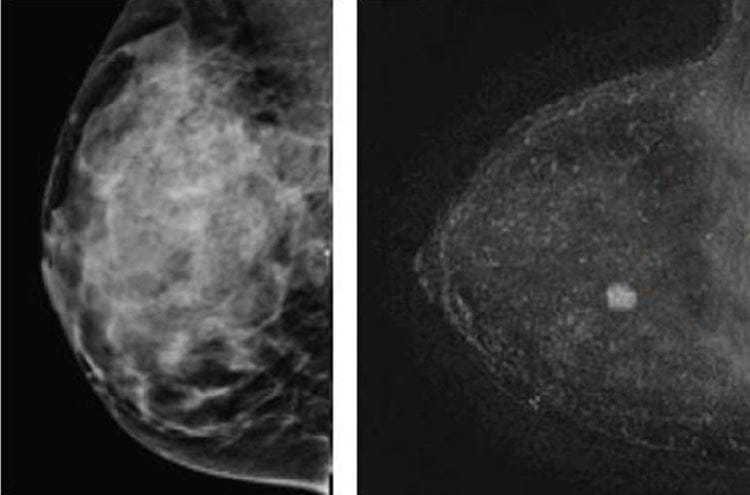Improving Breast Cancer Detection in Women