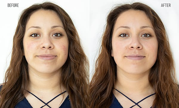 Before and after photos of a woman who has received a Hydrafacial