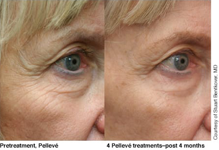 Pelleve Eye Treatments
