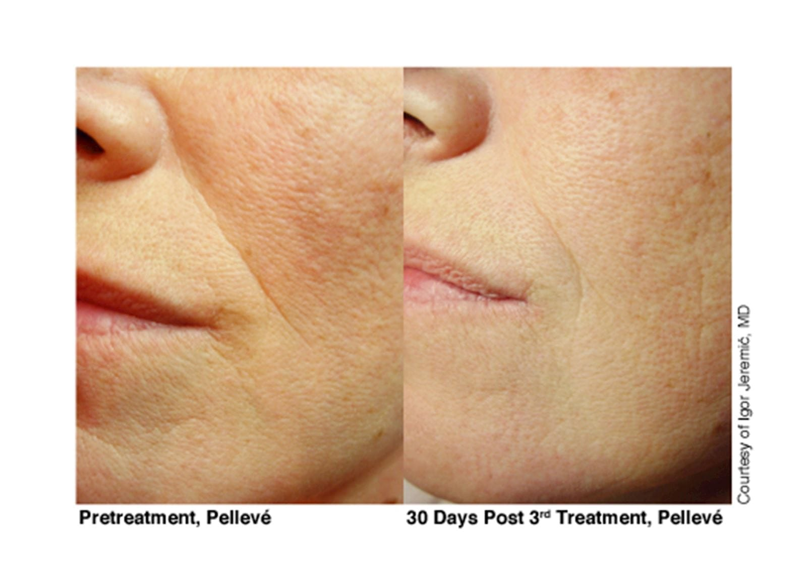 Pelleve Lip Treatments