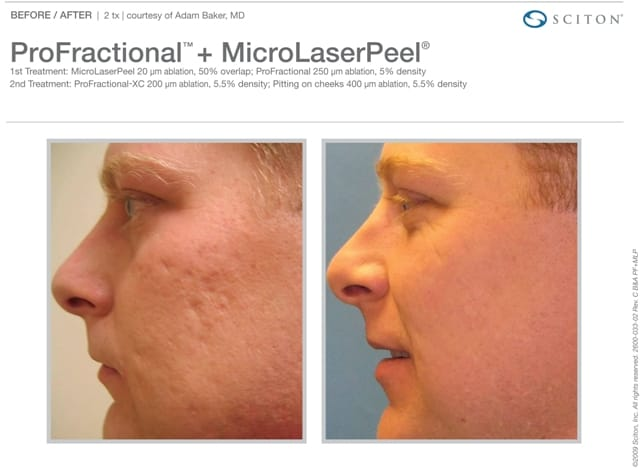 MicroLaserPeel Cheek