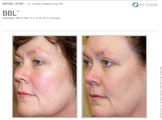 Phototherapy Face Before and After