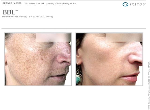 Phototherapy Freckles Before and After