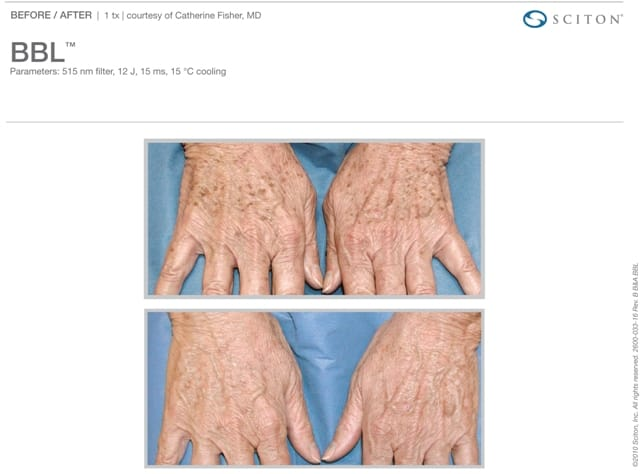 Phototherapy Hands Before and After