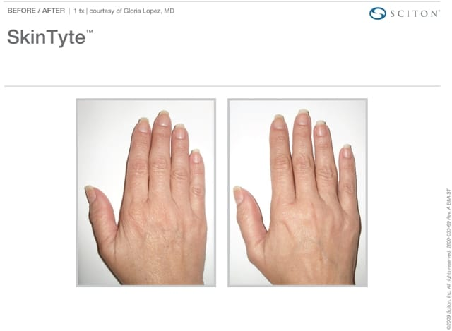 SkinTyte Hand