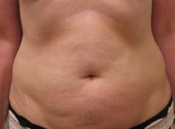 Liposuction the iowa clinic before solutioingenieria Image collections