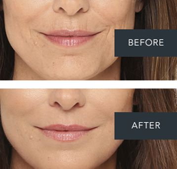 Before and After photos of a face treated with Radiesee Filler.