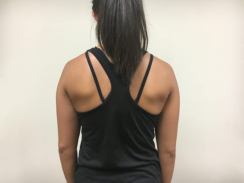 Shoulder blade squeeze start