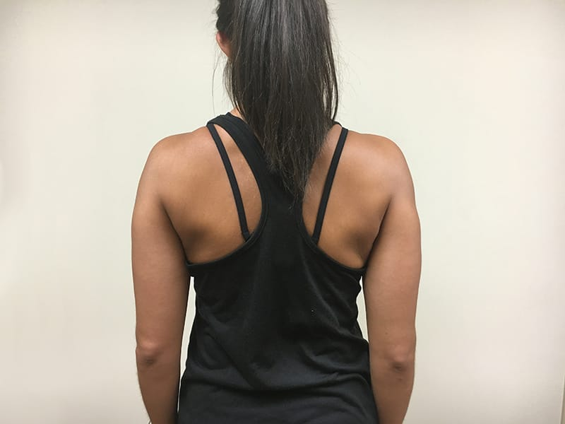Shoulder blade squeeze end